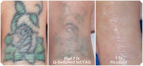 q switch laser tattoo removal before and after hotch laser laser removal