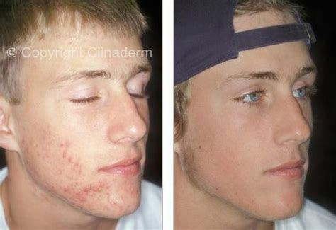 Can Detox Cause Pimples On by 3 Clinaderm Acne Pills Clear Skin Blemishes Scars