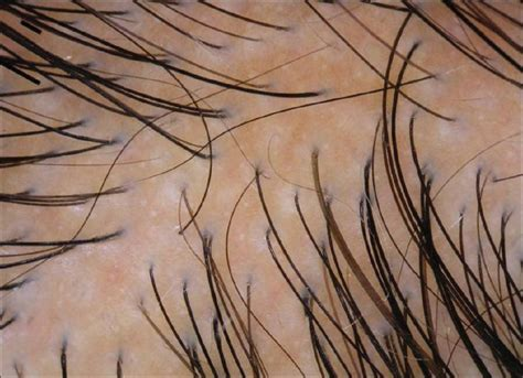 Type 2 Hair Loss by Pattern Hair Loss Clinico Laboratory Findings And