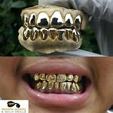 Gold Teeth Grillz | 1080 x 1080 jpeg 254kB