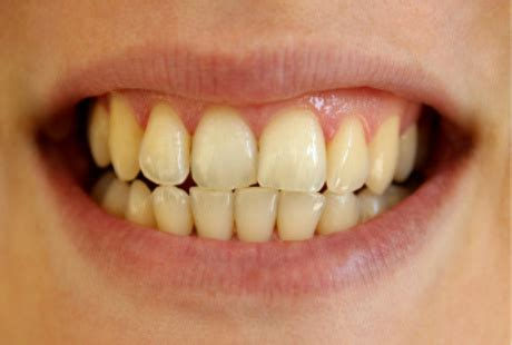 Daftar Obat Pemutih Gigi obat pemutih gigi