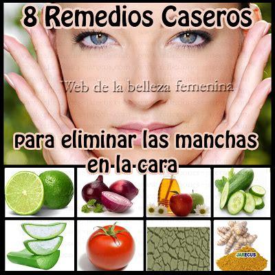 Tratamientos Tratamientos Para Las Manchas | remedios caseros para las manchas en la cara salud y belleza