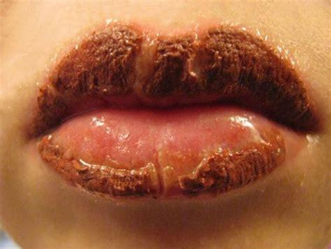 tattoo lips healing restoring lips after tattoo page 1
