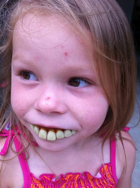 Buck Toothed Girl Meme - buck teeth meme 100 images aw who did this ghetto red