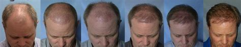 hair transplant timeline photos fue hair transplant timeline photos hairstylegalleries com