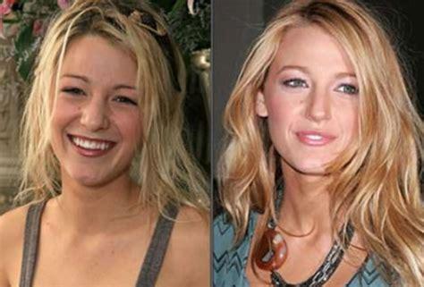 375 best images about celebrity plastic surgery on pinterest 10 stars vor und nach ihren sch 246 nheits ops dex1 info