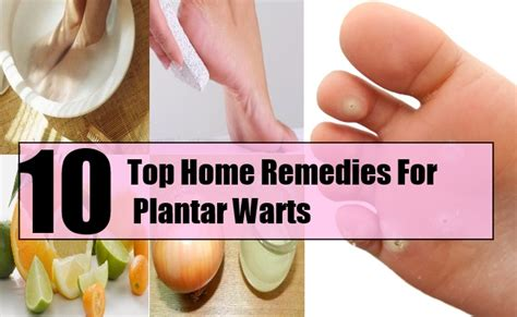 10 top home remedies for plantar warts search home remedy