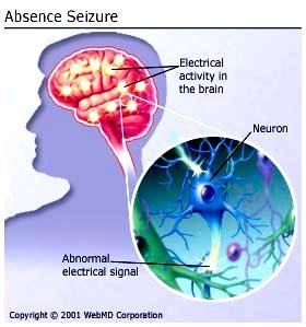do led lights cause epileptic seizures phawker com curated news gossip concert reviews