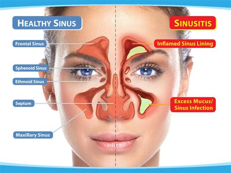 Home Remedies For Sinus Infections by Remedies For Sinusitis Indian Tips
