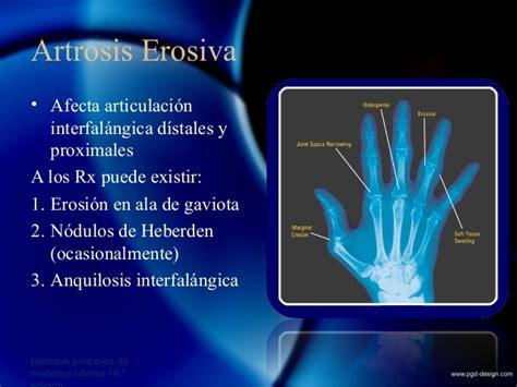 meniscopatia degenerativa interna enfermedades articulares