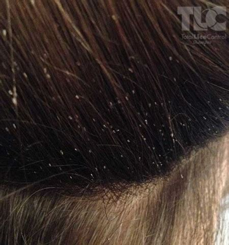 what color is lice picture of lice in brown hair om hair