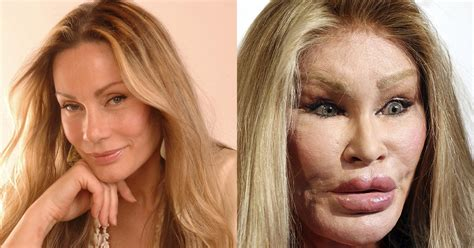 375 best images about celebrity plastic surgery on pinterest best cars in just cause 2 upcomingcarshq com