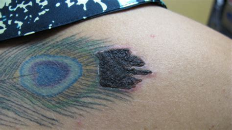 laser tattoo removal side effects pictures 17 scabbing infected tattoojpg infection