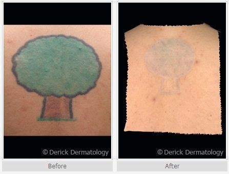 laser tattoo removal stockton ca 63 best removal before and after images on