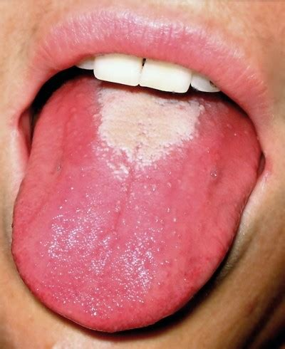 tongue color tongue coating abnormal color causes and pictures
