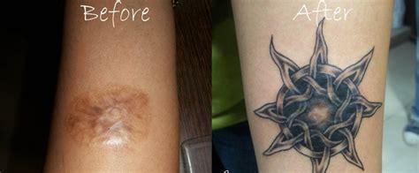 tattoo ediva gr 13 υπέροχα tattoo για κάλυψη ουλών ραγάδων και σημαδιών