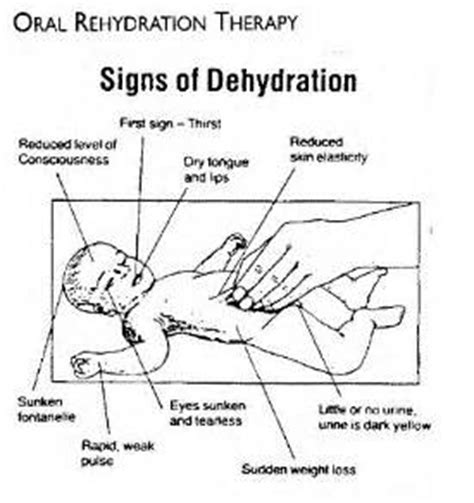 dehydration for 2 year nature s eye rehydration
