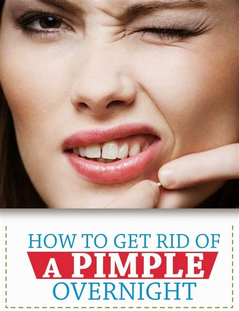 How To Get Rid Of Detox Acne Fast by 1000 Ideas About Pimples Overnight On Get Rid