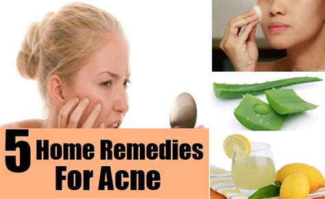 Best At Home Acne Treatment by How To Cure Your Pimples Acne Gse Health Tips