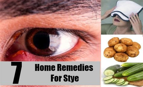 how to treat a stye eyelid infection