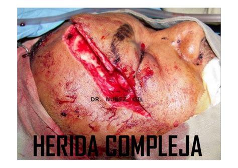imagenes de heridas para halloween curso de principios basicos en cirugia heca 2015 tipos de