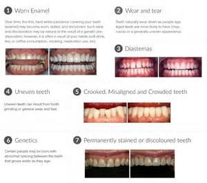 porcelain veneers cost dental veneers teeth veneers in