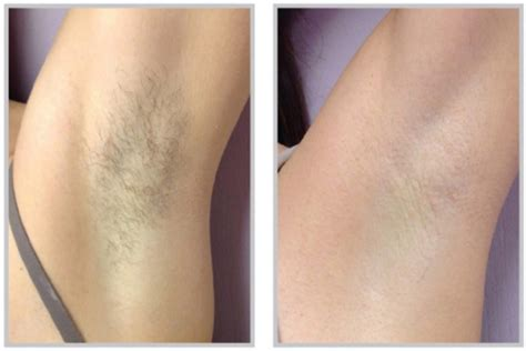 tattoo removal light gallerysj picture2 the hartland podiatry clinic