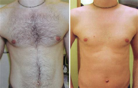men trim pubic hair galerry male pubic hair laser removal techniques for chest hair