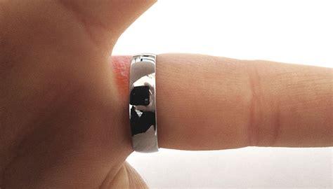 rash appearing platinum ring