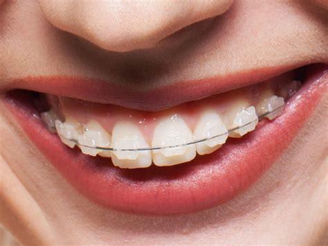 apparecchio ortodontico mobile l apparecchio ortodontico fisso ecco come funziona lo