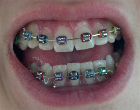 best colors for braces the gallery for gt cool braces colors combinations