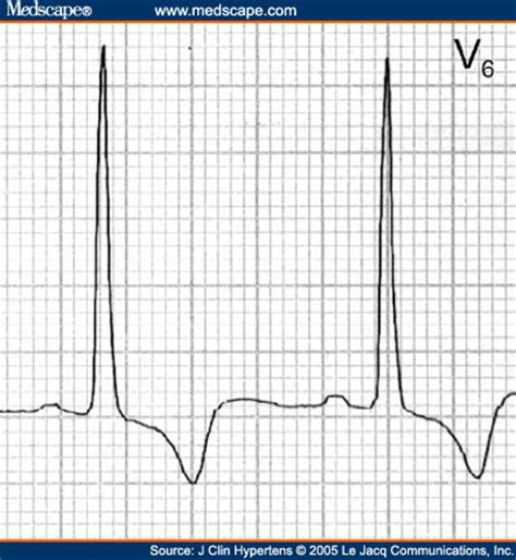strain pattern ecg definition ecgs for ems lvh strain ischemia or what