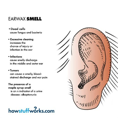 color of earwax what color should earwax be prolonged use of headphones