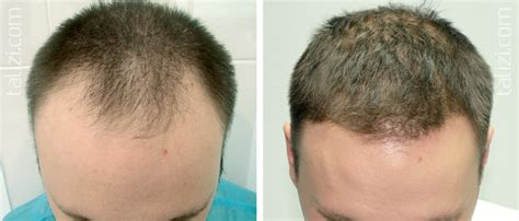 great frontal hair line 1000 graft hair transplant results iv and v stages of baldness
