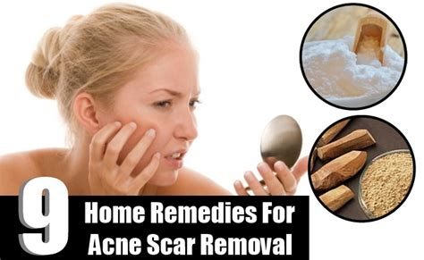 9 home remedies for acne scar removal how to remove acne