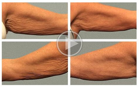 crepey skin on arms 3 everyday habits that cause crepey skin and one secret