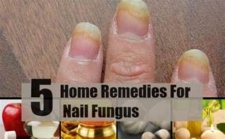 5 home remedies for nail fungus treatments