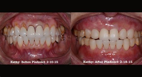 Comfort Dental Broomfield Co by Services Broomfield Co Periodontist
