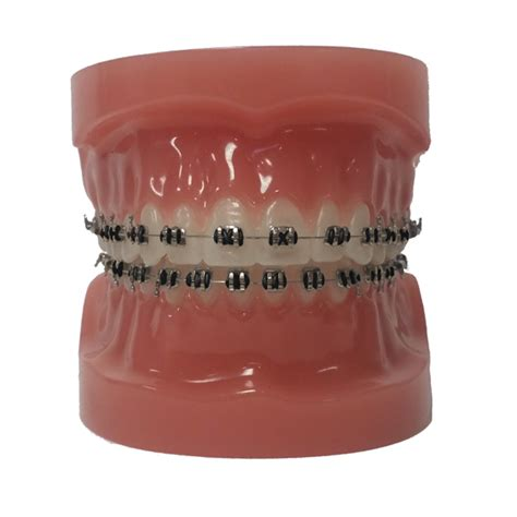 black color braces customize your colors portland orthodontics