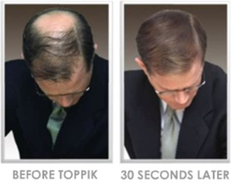 hair extensions for men before and after thin hair solutions hairstyling for thin hair thin hair