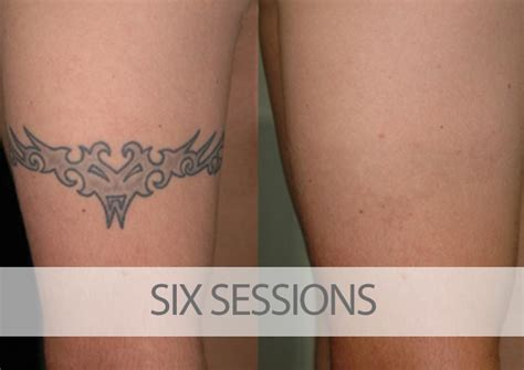 laser tattoo removal results gallery eraditatt