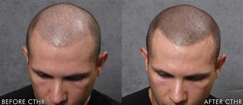 micro scalp pigmentation msp hair pigmentation