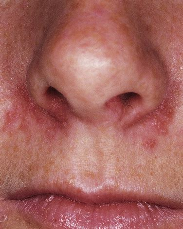 herpes all interno della bocca herpes nasale infiammazione naso infiammazione