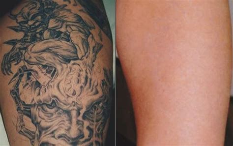 tattoo removal washington dc laser tattoo removal washington dc cosmetic skin