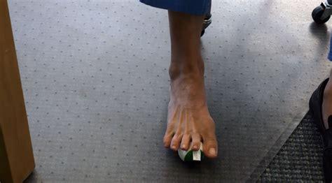 hammer toe exercises hammertoe pain relief  corrector