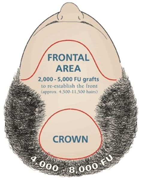 30000 hair graft cost hair transplant surgery cost results and celebrity