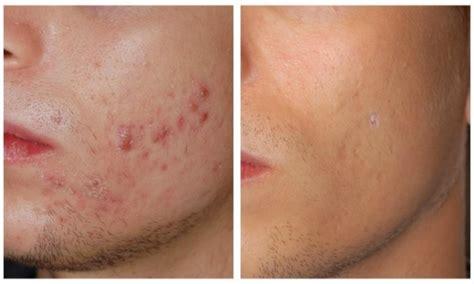lade viso lade per macchie acne lade per macchie acne macchie