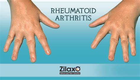 arthritis symptoms what are th 195 169 symptoms of rheumatoid arthritis