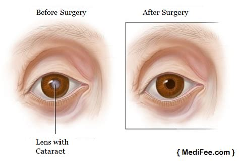 cataract surgery cost 2016 cataract surgery before and after images