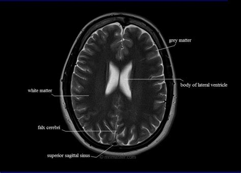 cross sectional radiology 107 best images about radiology anatomy on pinterest